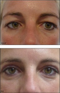 Med-Mooi ooglid 2