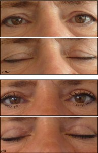 Med-Mooi ooglid 7