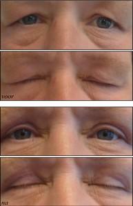 Med-Mooi ooglid 8